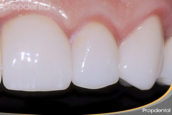 tipos de porcelana dental