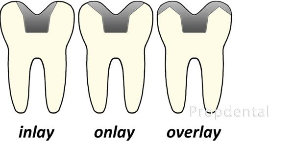 tipos incrustaciones dentales inlay onlay overlay