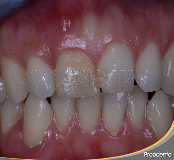 tratamiento absceso dental