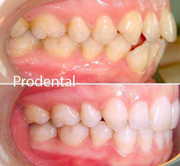 tratamiento ortodoncia antes y despues