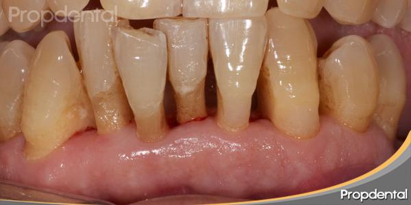 tratamiento periodontitis avanzada