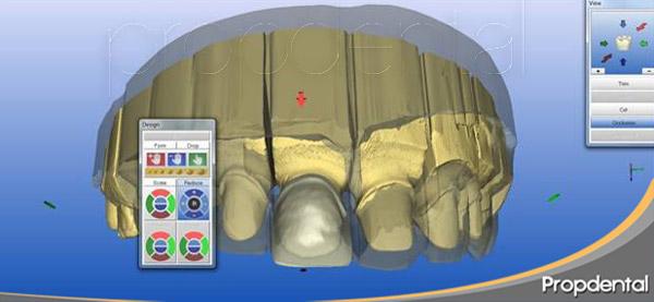 zirconio diseñado con cad cam dental