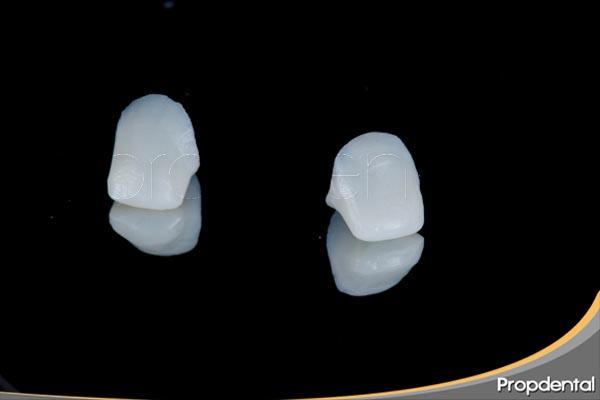 zirconio dental