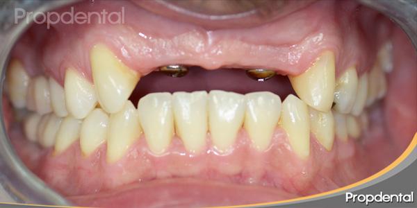 2 implantes dentales