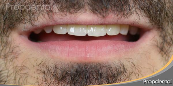Golpe en diente implantado