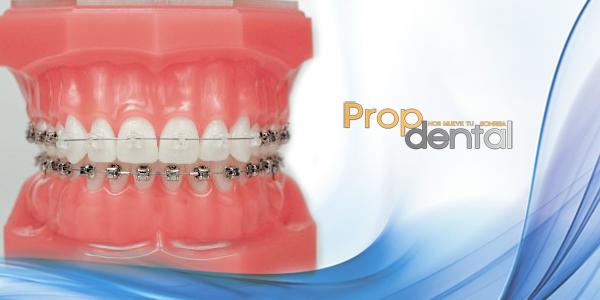 Adhesión de los brackets dentales