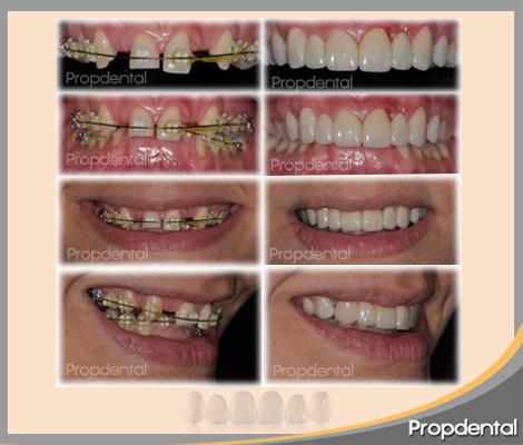 antes y después del tratamiento propdental