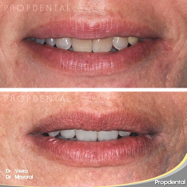 antes y después con el labio en reposo