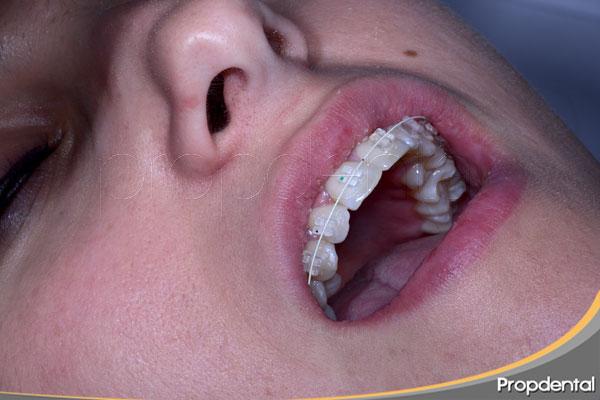 beneficios-del-tratamiento-de-ortodoncia