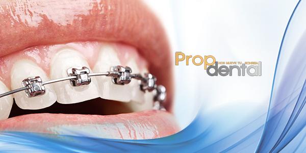 brackets autoligados de ortodoncia