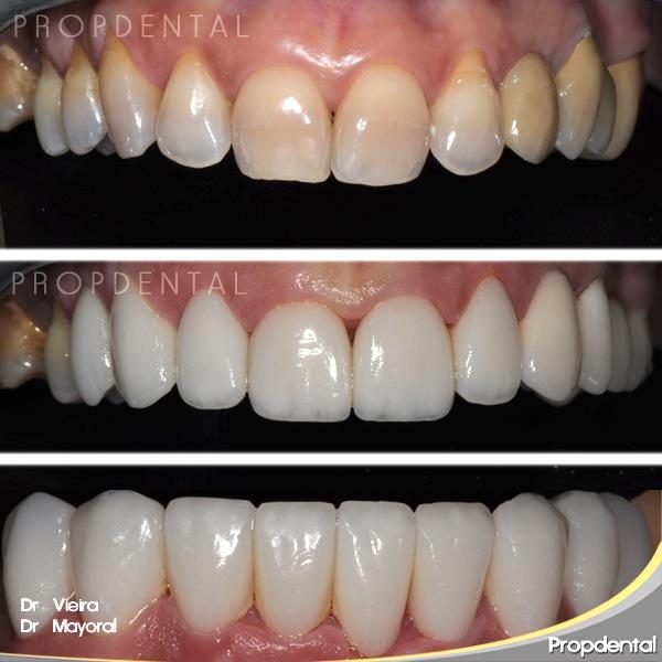 carillas de porcelana en dientes amarillos