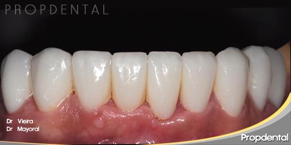 carillas estéticas de porcelana dientes inferiores