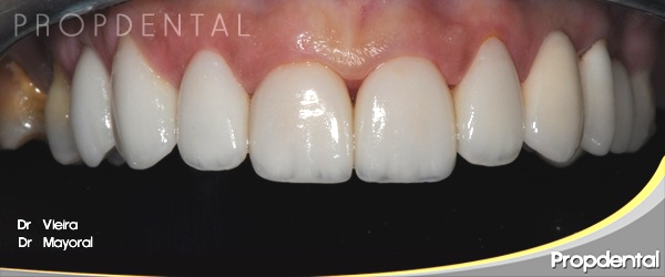 carillas estéticas de porcelana dientes superiores