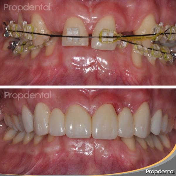 caso clínico coronas dentales