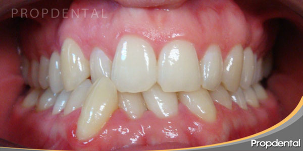 caso clinico de ortodoncia