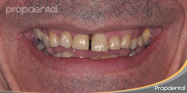 caso clínico de prótesis dentales