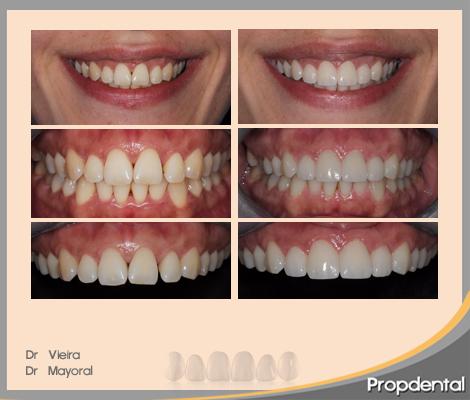 caso clínico prótesis dentales