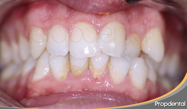 caso de ortodoncia en barcelona