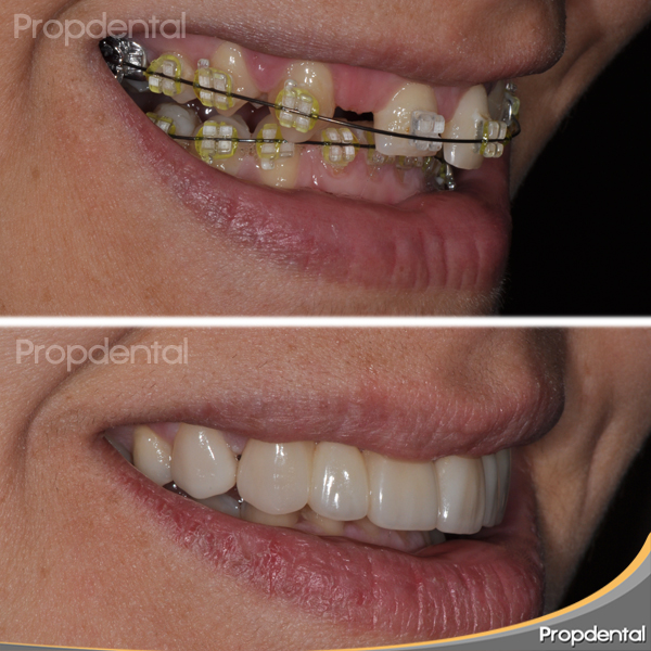 caso de ortodoncia y estética dental