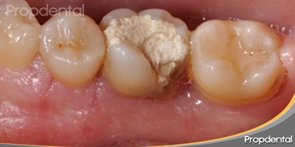 cicatrización después de la intervención por el periodoncista