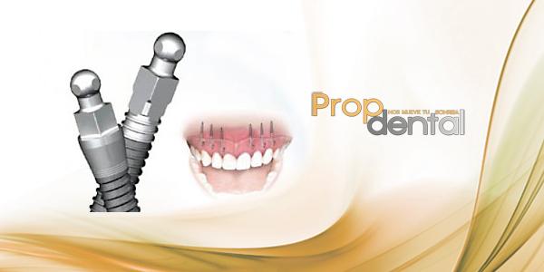 Procedimiento quirúrgico para la colocación de los implantes