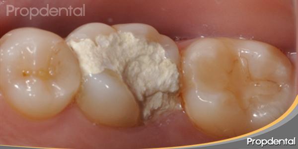 diente destruido