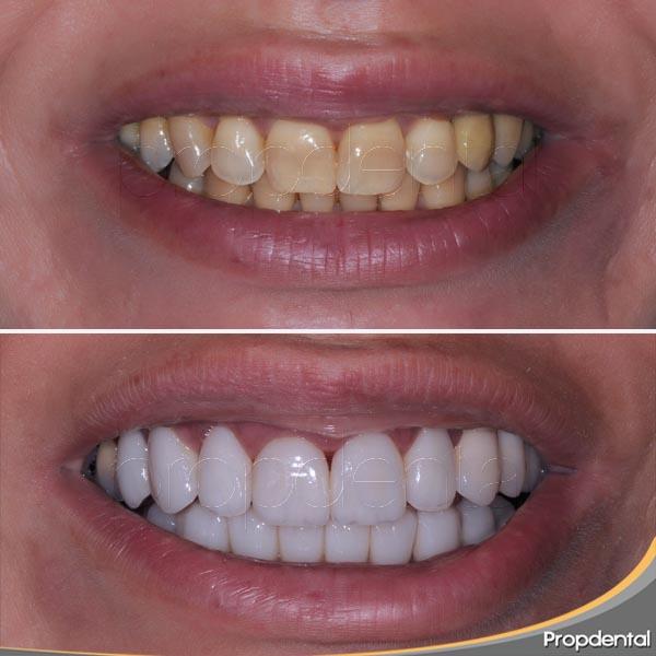 dientes manchados antes
