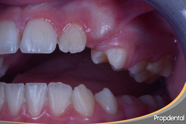 erupción de dientes