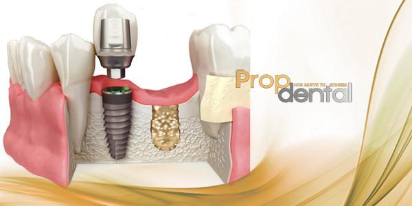 Espacio biológico en implantes dentales