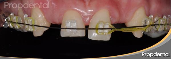 espacio entre dientes