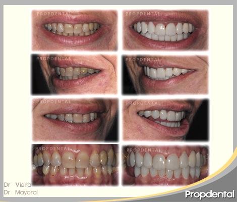 estética dental propdental