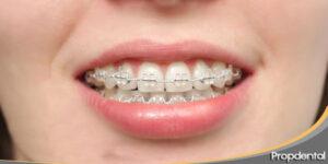 Cuestion sobre ortodoncia