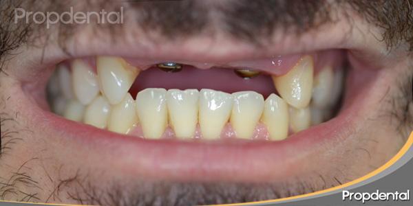 faltan 4 dientes seguidos