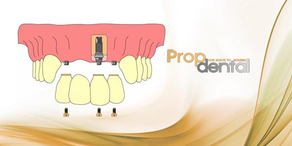 Fonética de las prótesis sobre implantes