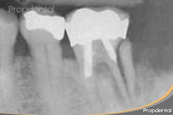 fractura de un molar endodonciado
