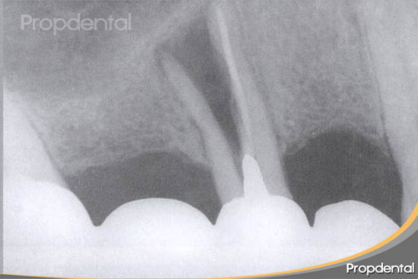 fractura radicular vertical premolar