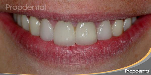 dientes de circonio