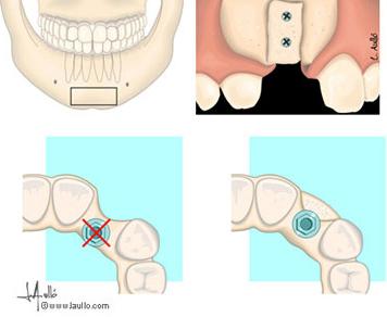 injerto de hueso para implantes