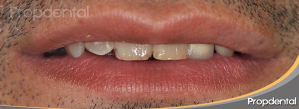 labio en reposo antes del tratamiento