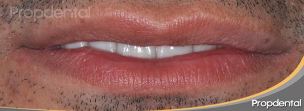 labio en resposo después de la estética dental