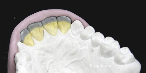 llave de silicona en odontología