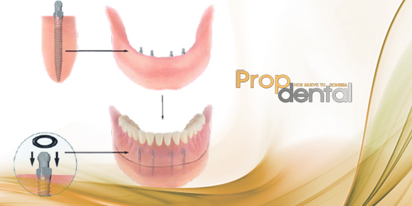 osteointegración del implante