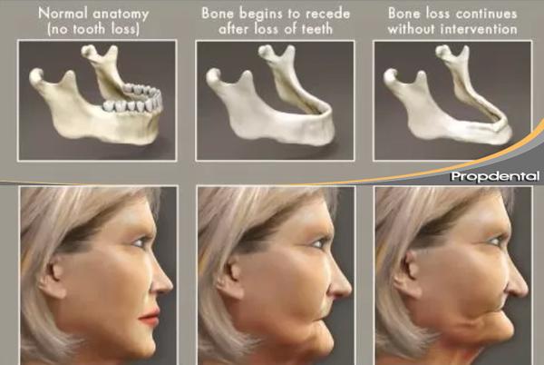 pérdida de hueso por la falta de dientes
