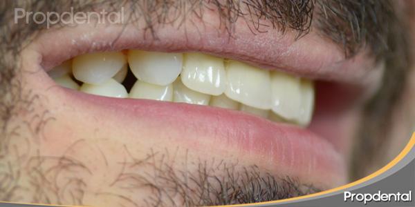 perfil derecho sin dientes
