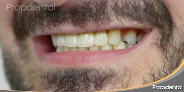 perfil izquierdo con dientes