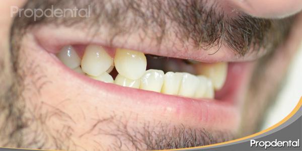perfil izquierdo sin dientes