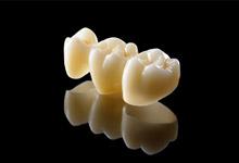 póntico dental