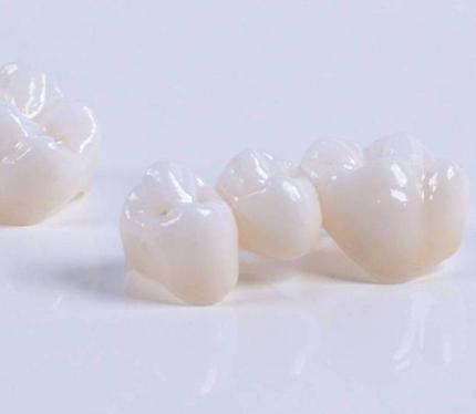 póntico prótesis dentales