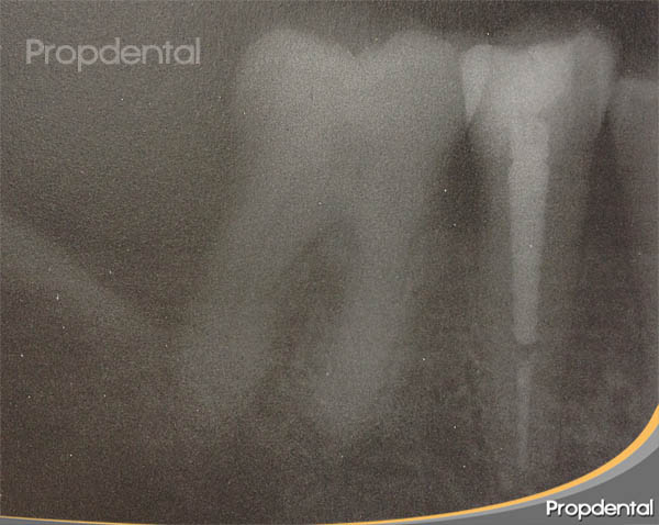poste dental en diente endodonciado