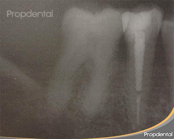 poste diente endodonciado